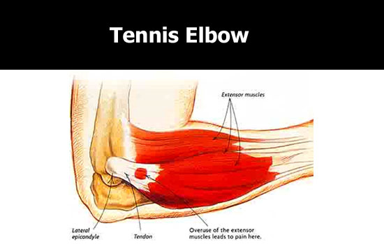 Forearm Pain Near Elbow | Use Elbow Ease® to relieve Elbow Pain